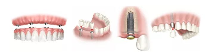 Implantes dentales en Palma de Mallorca