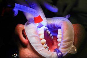 Estética dental en Palma de Mallorca