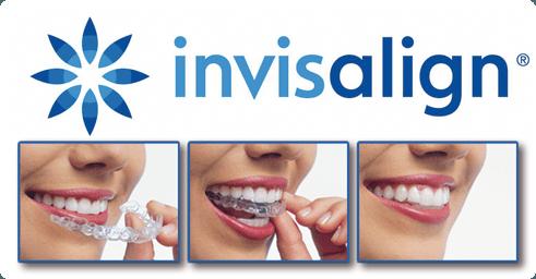 Ortodoncia invisible invisalign en Palma de Mallorca