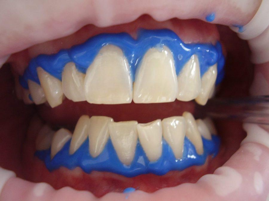 Estética dental Blanqueamiento dental en Palma de Mallorca