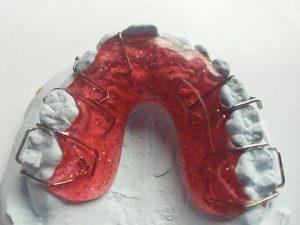 Prótesis dentales y estética dental