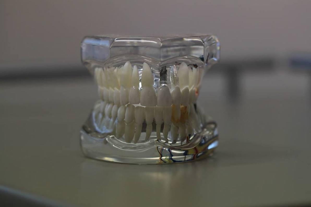Prótesis dentales y estética dental en palma de mallorca
