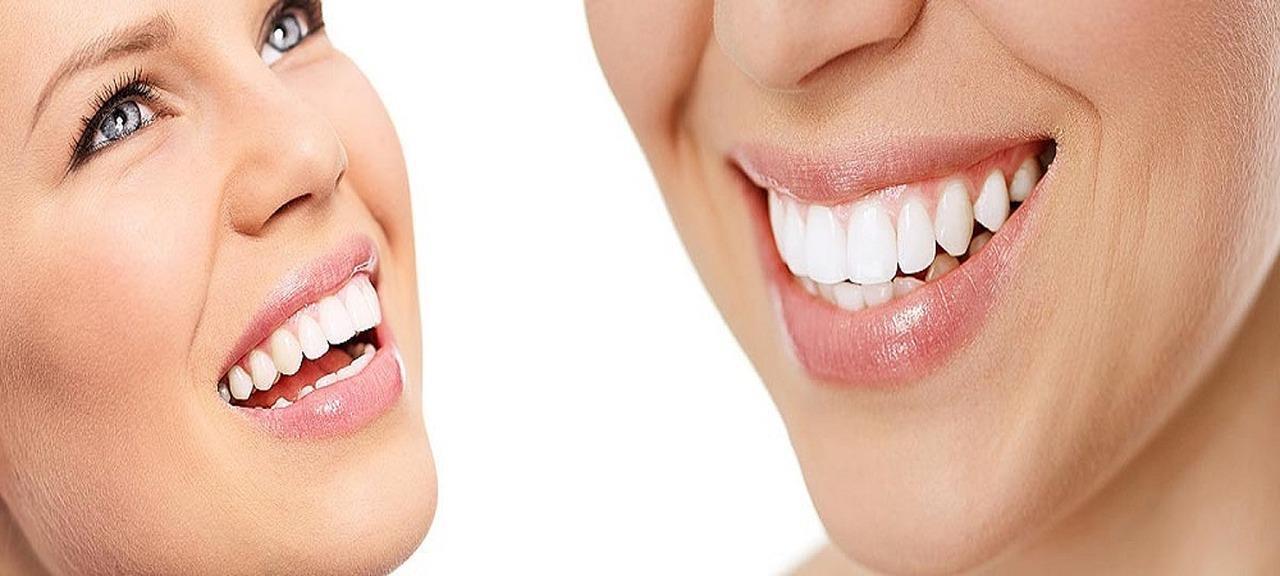 Coronas, carillas, puentes y otros elementos de la estética dental