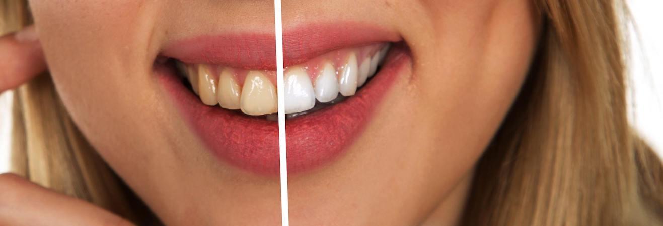 El tratamiento de blanqueamiento dental