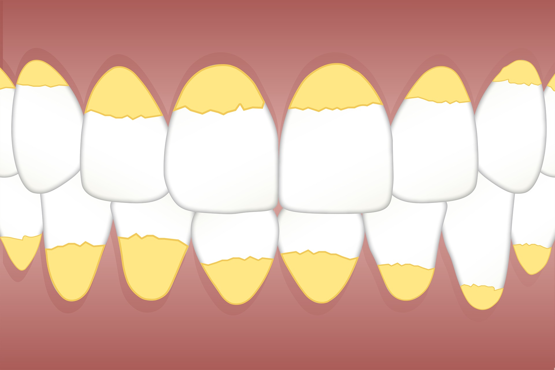 Dientes amarillos, causas, prevención y tratamientos